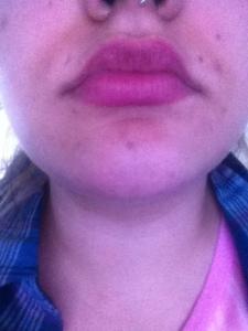 1 week after a glycolic peel (1)